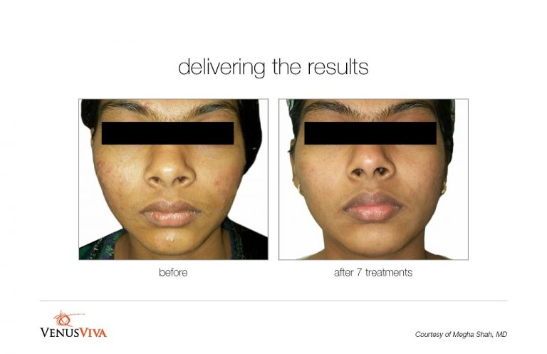 via-acne-treatment-BA