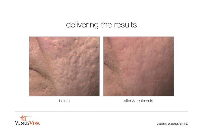 viva-acne-scar-treatment-BA004