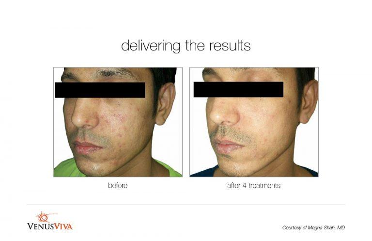 viva-acne-treatment-BA003