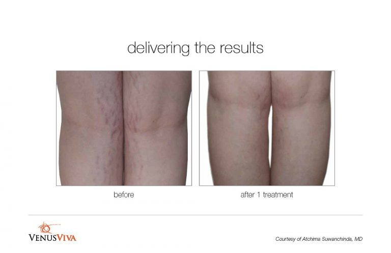 viva-stretch-mark-BA002-768x497